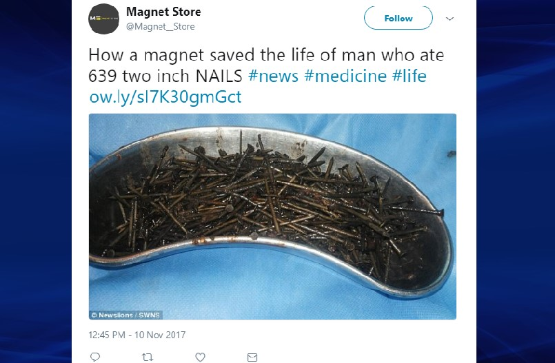 639 nails removed from patient's intestine